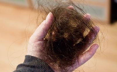 غذاهای مناسب برای رشد مو