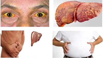 اغلب در ابتدای بیماری کبد چرب هیچ علامتی وجود ندارد