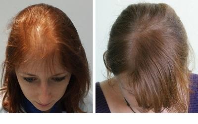 قبل از درمان ریزش مو به عواقب آن فکر کنید