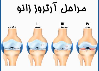 ساختار مفصل و غضروف